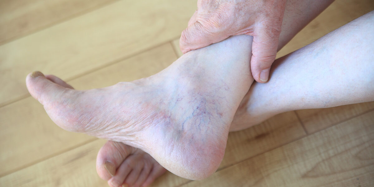 Are There Any Ways To Prevent And Remove Spider Veins?